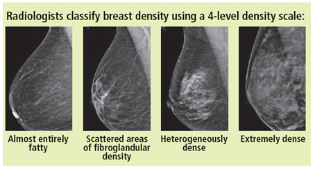 Breast Density And You